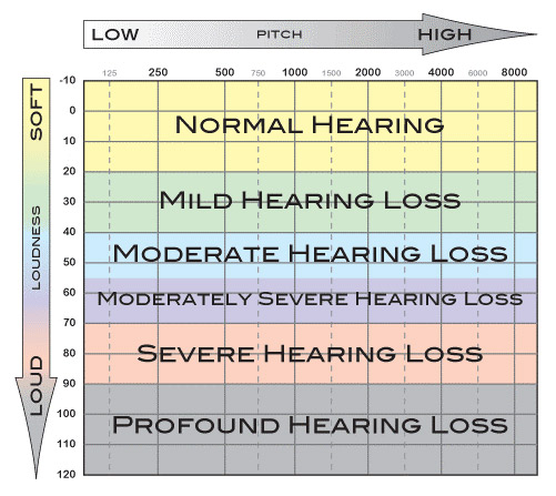 Audiogram Hearing Test Naples, FL